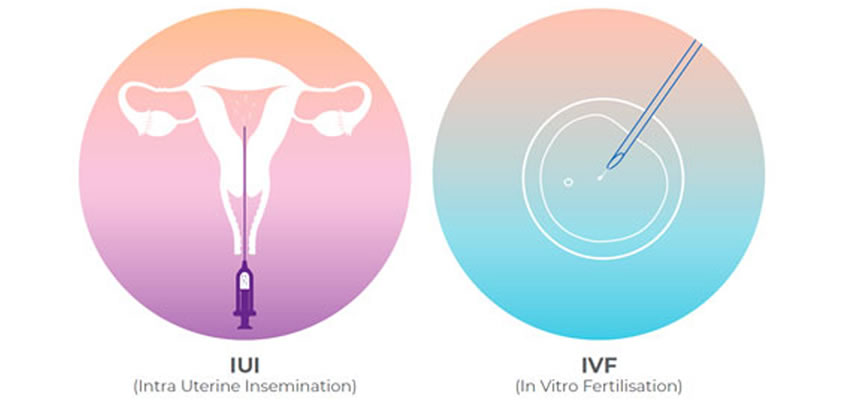 IUI vs IVF: Which is right for you?
