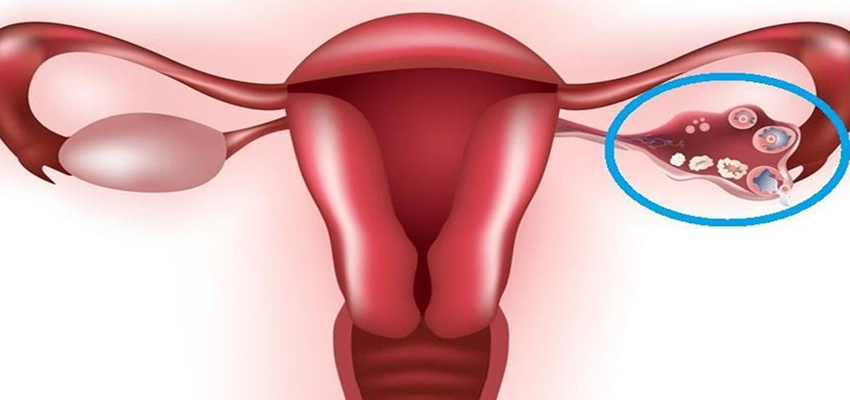 Patient Basics: Know about Ovarian Cysts